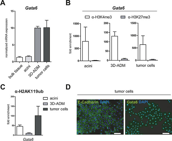 Gata6 is persistently activated in the in vitro sequence of pancreatic carcinogenesis.
