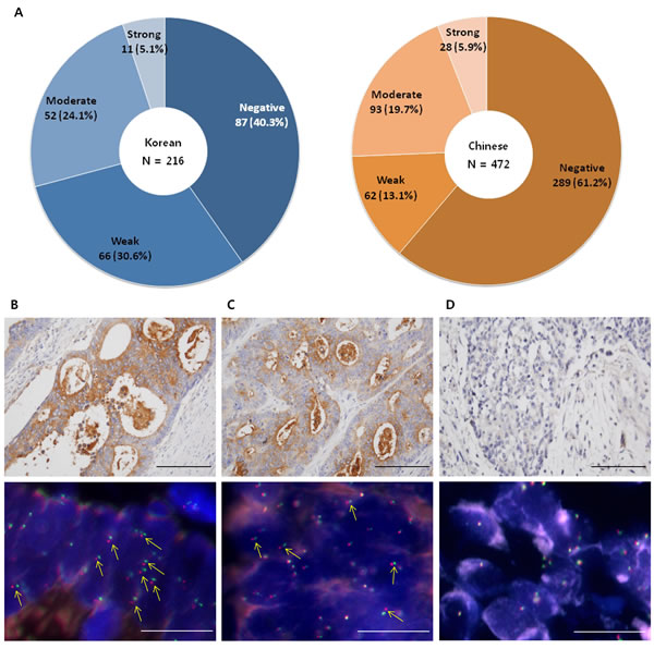 The prevalence of TrkA protein expression in Korean and Chinese patients with colon cancer.