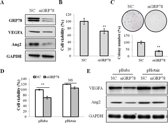 GRP78 knockdown suppressed cell viabilities and angiogenesis in NPC cells.