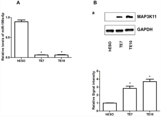 Baseline miR-199a-5p and MAP3K11 protein expression levels in human esophageal cell lines.