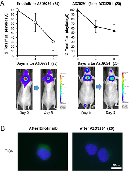 Effect of high dose-AZD9291 treatment after acquisition of EGFR-TKI resistance.