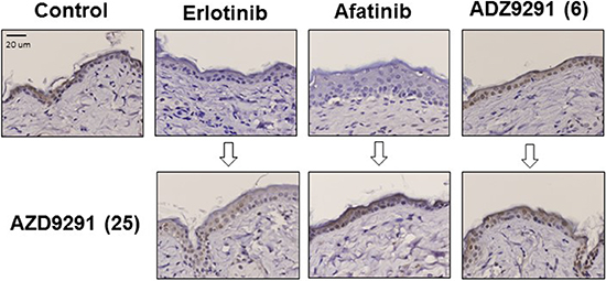 The effect of continuous EGFR-TKI treatment on MAPK phosphorylation in normal skin cells.