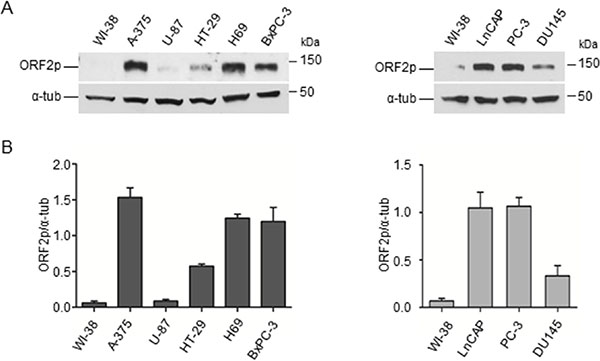 Detection of ORF2 protein in human cancer cell lines.
