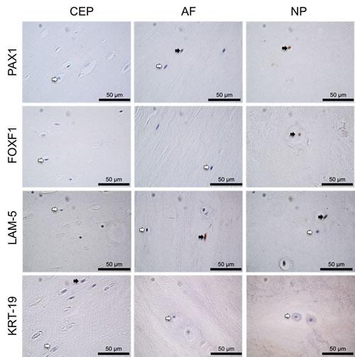 Immunohistochemistry of post mortem intervertebral disc samples.