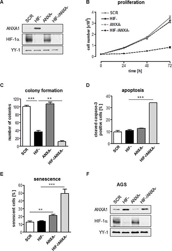 Effects of combined inhibition of HIF-1α and ANXA1 on AGS cell proliferation.