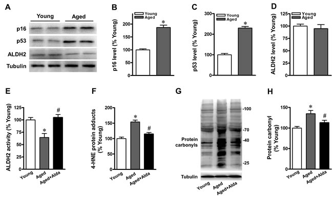 Aged mice show reduced cardiac ALDH2 activity and increased protein carbonyls.