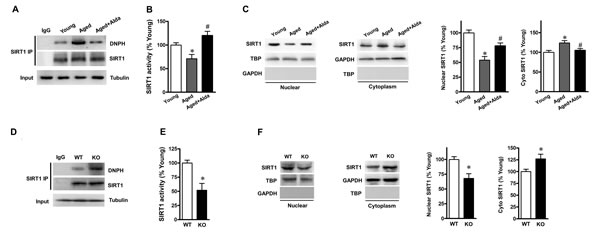 ALDH2 activation enhances SIRT1 activity in aged heart.