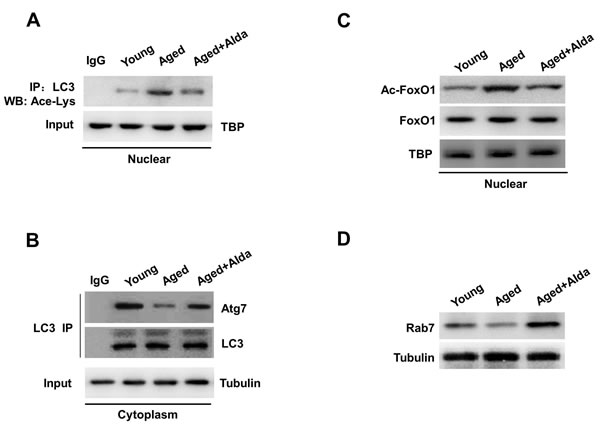 ALDH2 activation facilitates deacetylation of LC3 and FoxO1.