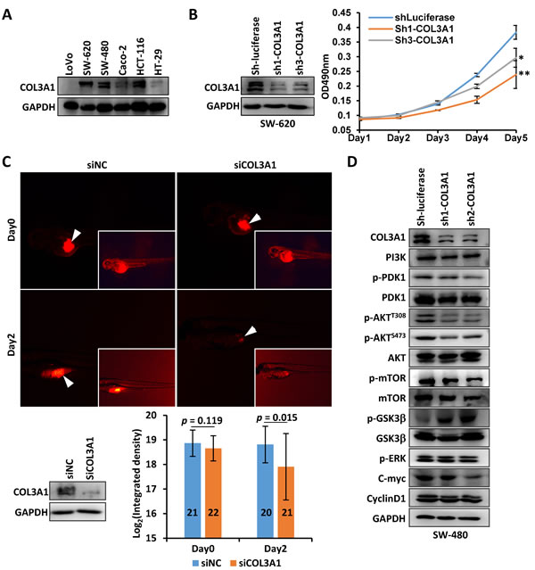 Silencing of COL3A1 promotes CRC cells proliferation.