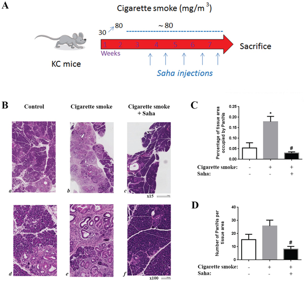 Cigarette smoke exposure stimulates pancreatic lesion formation and HDAC inhibition prevents this effect in KC mice.