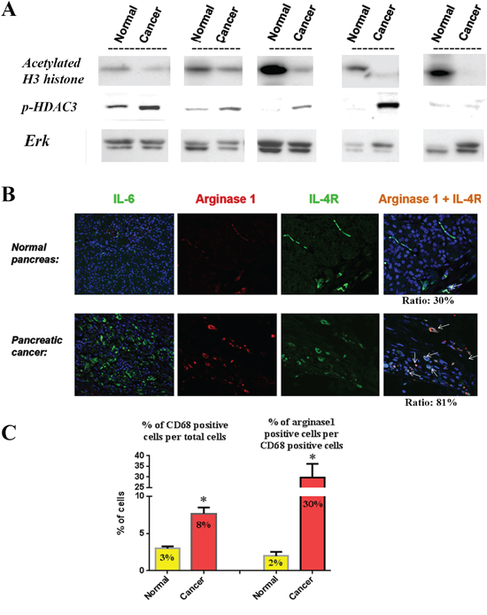 Relationship between histone acetylation, p-HDAC3, IL-6, macrophage phenotype and IL-4 receptor in human tissue samples.