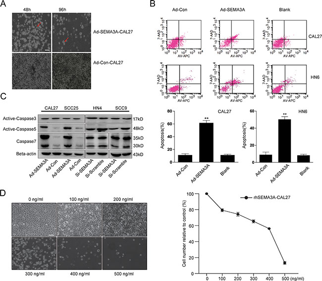 SEMA3A over-expression induces apoptosis in HNSCC cells in a caspase-dependent manner.