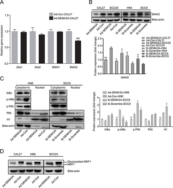SEMA3A-mediated reversion of EMT was associated with the inhibition of NF-κB-SNAI2 pathways.