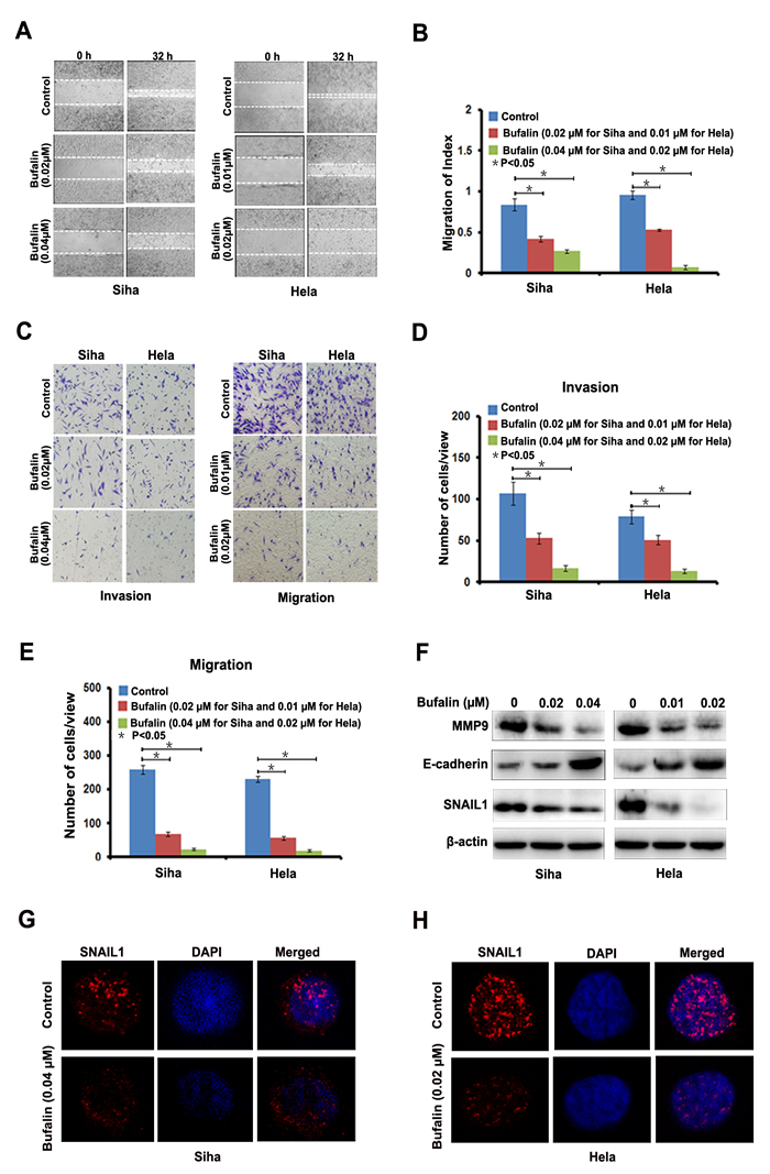 Bufalin suppressed cervical cancer cell migration and invasion by regulating EMT-associated proteins.