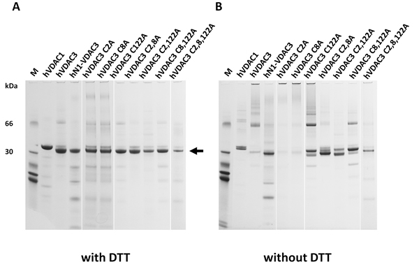 Selective cysteine mutations change the electrophoretic behavior and the ability to complement a porin-defective yeast strain.