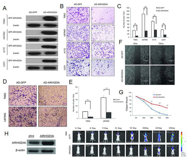 Overexpression of ARHGDIA inhibits glioma migration and invasion.