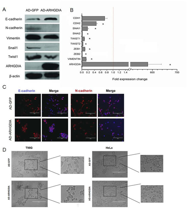 Overexpression of ARHGDIA reverses mesenchymal-like characteristics of glioma cells.