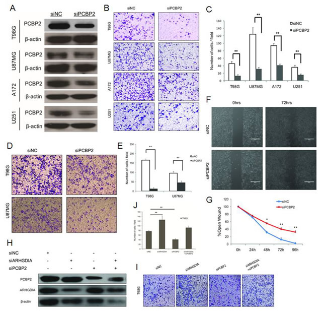 Knockdown of PCBP2 inhibits glioma cell migration and invasion