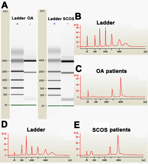 Figure 1 : The quality evaluation of total RNA of human Sertoli cells derived from SCOS patients and OA patients.