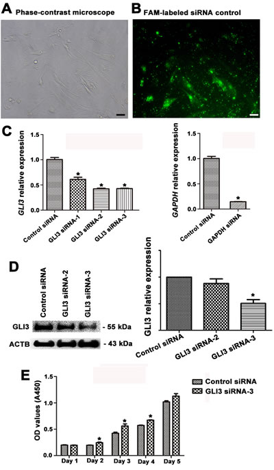 Figure 8 : Transfection efficiency of GLI3 siRNAs and the influence of GLI3 knockdown on the growth of human Sertoli cells.