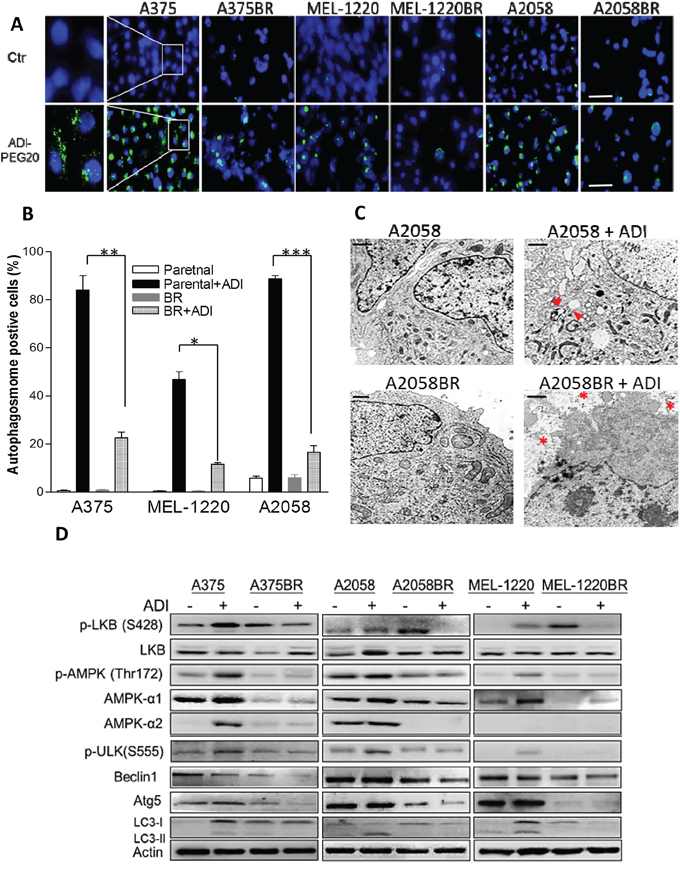 Low levels of autophagy-associated proteins are implicated in vulnerability to arginine deprivation in BR cells.