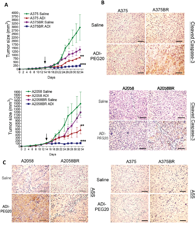 ADI-PEG20 aborts BR tumor growth through increased cleavage of caspase-3 and attenuation of ASS1 expression.