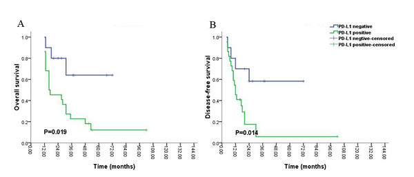 Kaplan-Meier survival analysis of PD-L1 expression and the prognosis including overall survival (A) and disease-free survival (B) for all the patients with glioblastoma (grade IV) during long-time survival or follow up.