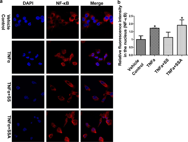 SSA does not influence the nuclear translocation of NF-κB in MDA-MB-231 cells.