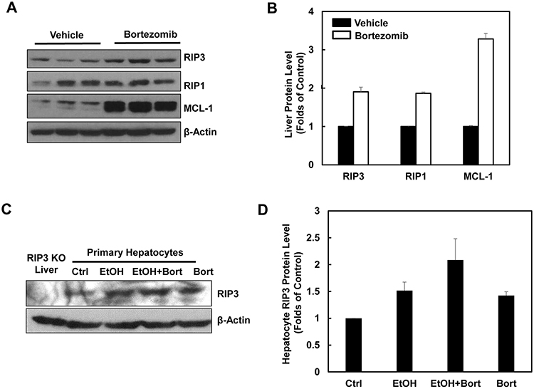 Pharmacological inhibition of proteasome increases protein levels of hepatic RIP1 and RIP3.