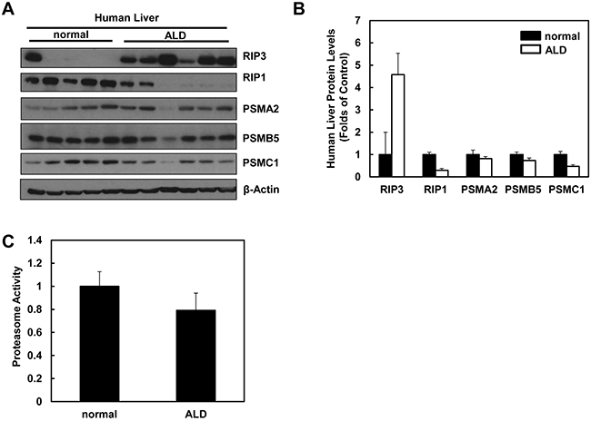 Human ALD livers have altered protein levels of RIP1, RIP3 and proteasome subunit proteins compared to healthy human livers.