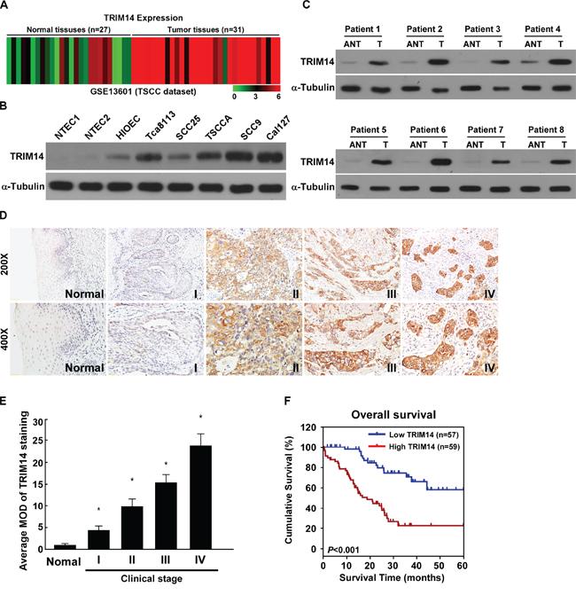Overexpression of TRIM14 correlates with TSCC progression and poor prognosis.