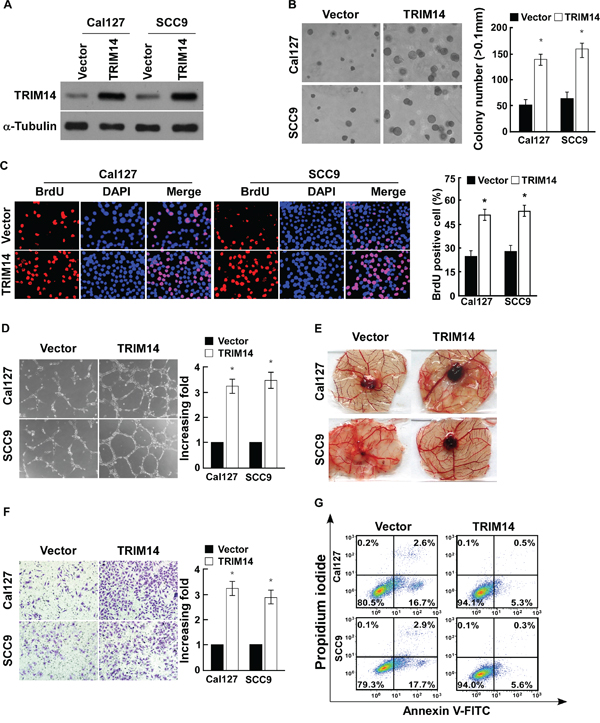 Up-regulation of TRIM14 expression promotes TSCC cell aggressiveness in vitro.