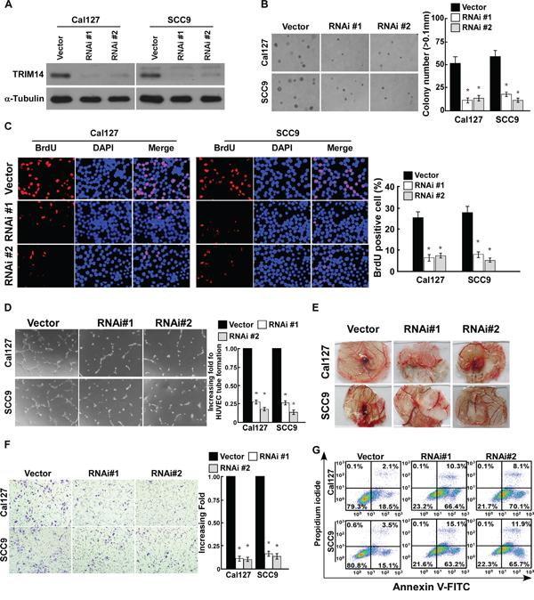 Downregulation of TRIM14 suppresses the aggressiveness of TSCC cells.