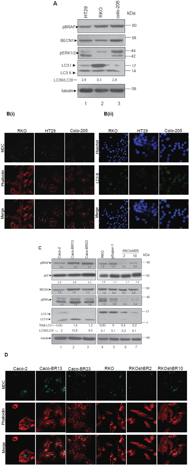 BRAF oncogene induces the expression of LC3- Association of autophagy with mutant BRAFV600E.