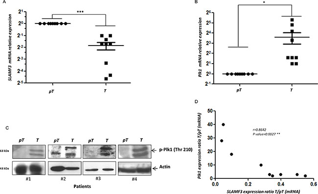 PLK1 and SLAMF3 expression level in HCC patients.