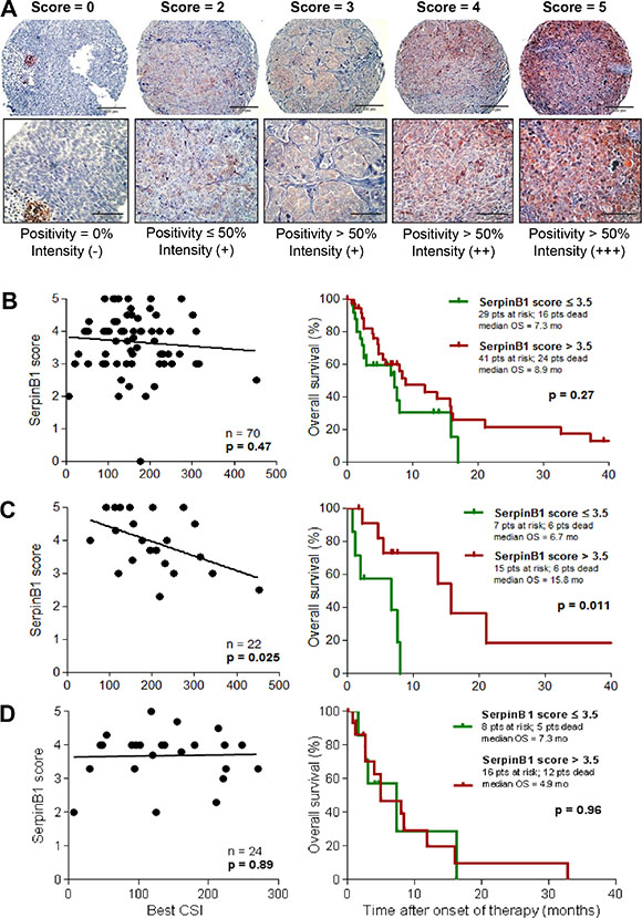 SERPINB1 protein expression in melanoma tissues correlates with in vitro and in vivo sensitivity to cisplatin-based chemotherapy.
