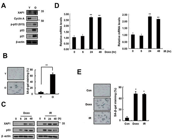 Increase in XAF1 expression in cellular senescence.