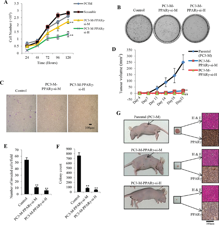 Effect of PPARγ suppression on malignant characteristics of PC3-M cells in vitro and their tumourigenicity in vivo.