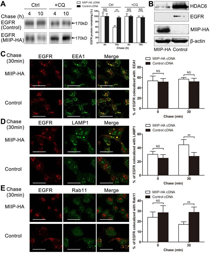 MIIP accelerates lysosomal degradation of mature EGFR.