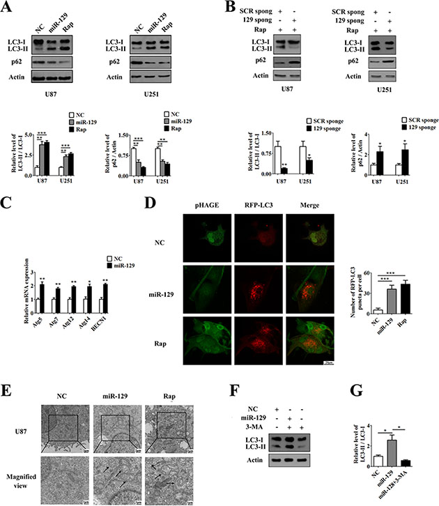 Overexpression of miR-129 induces autophagy in human glioma cells.