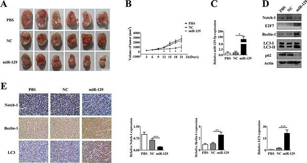 U87 GBM cell xenograft tumor experiment.