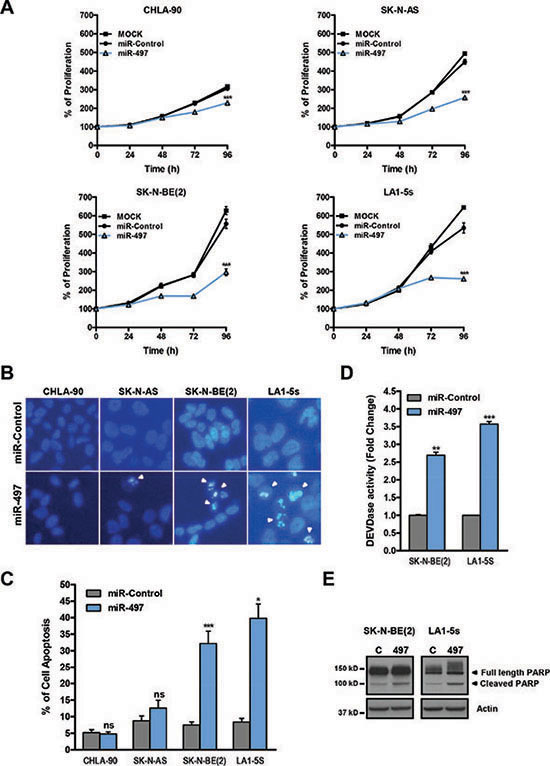 MiR-497 overexpression reduces proliferation of chemoresistant NB cells and induces apoptosis in MYCN-amplified NB cells.