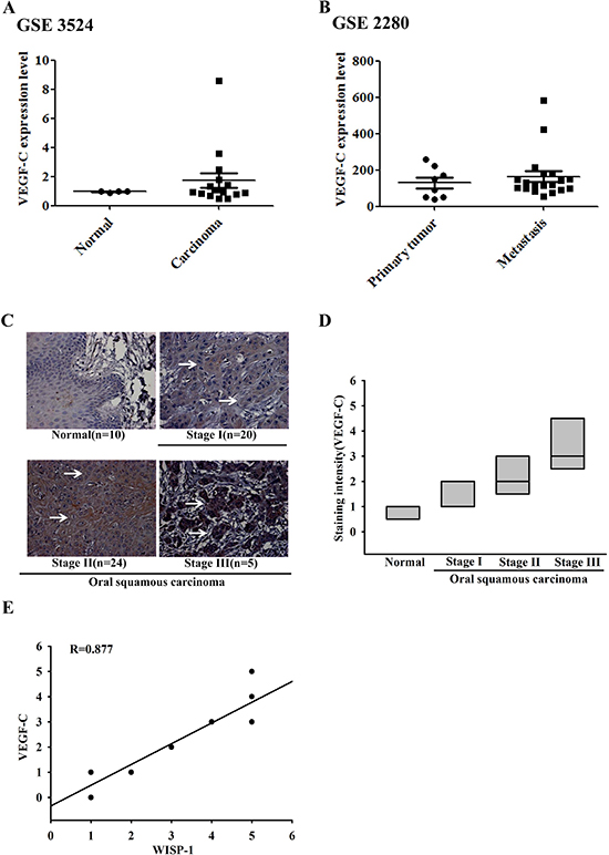 Clinical significance of WISP-1 and VEGF-C in specimens from patients with OSCC.