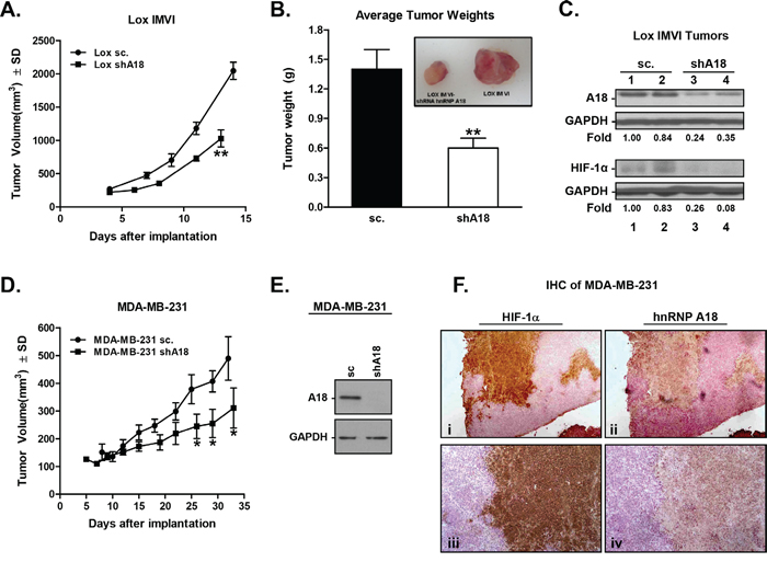 hnRNP A18 promotes human tumor growth in vivo.