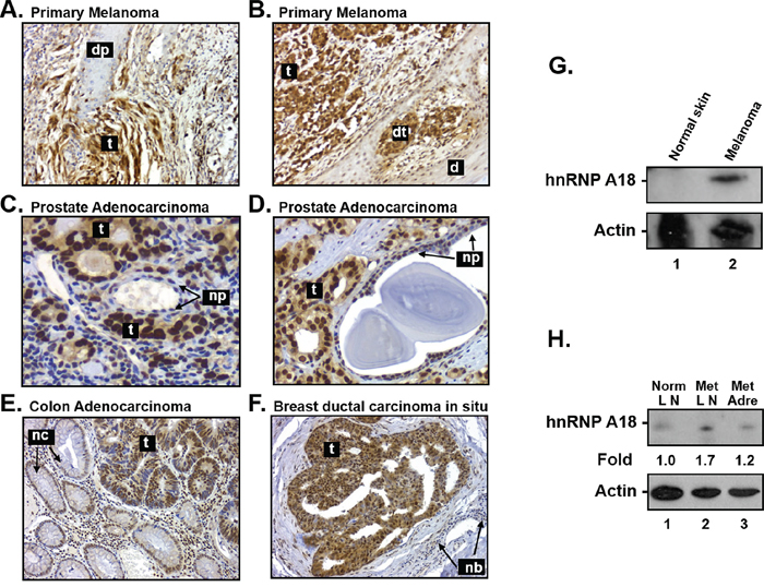 hnRNP A18 expression in human tumors.