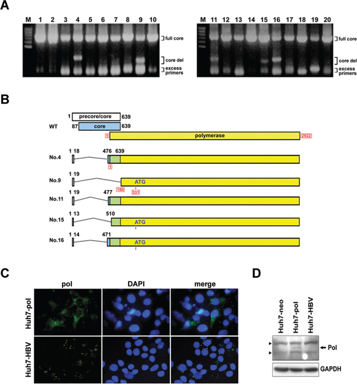 Identification of LFCDs in HCC patients and subcellular localization of HBV polymerase.