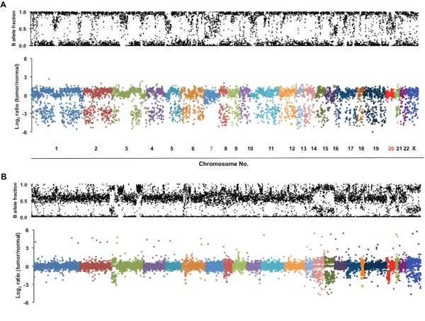 Genome-wide allelic loss identified in a MPM patient with multiple primary cancers.