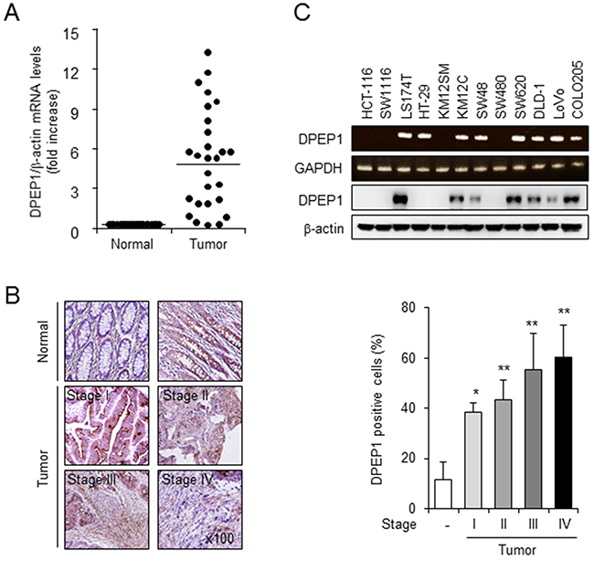 DPEP1 expression in colon cancer tissue and cell lines.