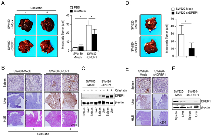 DPEP1 increases metastatic activity of colon cancer cells in vivo.