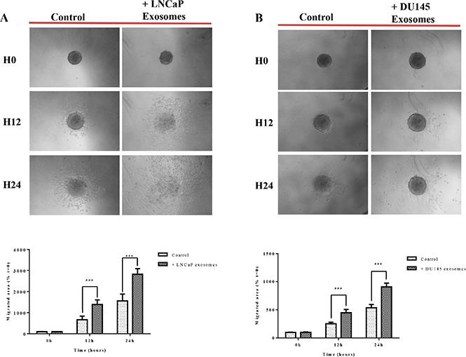 Exosomes increase RWPE-1 cell migration on collagen (I) RWPE-1 spheroids were incubated for 48 hours with exosomes (100 μg/ml) derived from (A) LNCaP, (B) DU145 cells or corresponding serum-free medium and transferred to microwells coated with type I collagen.